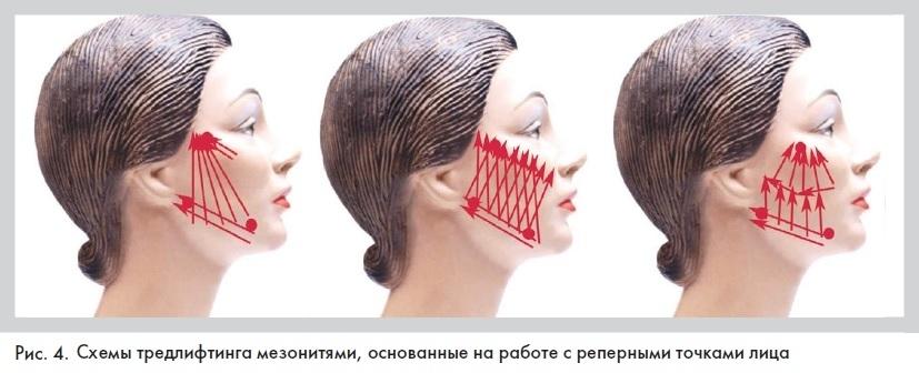 Схемы введения мезонитей на лице